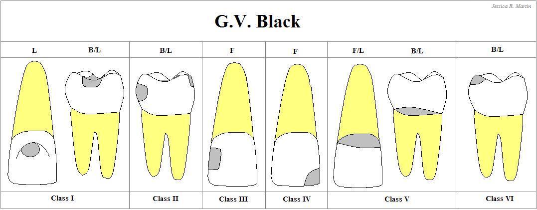 Klasifikasi Karies Gigi Menurut G. V. Black